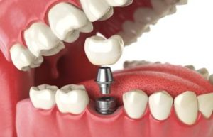 Marietta GA Dental Implants Periodontist in Vinings