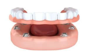Vinings GA Restorative Dentistry
