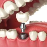 Single Tooth Dental Implant Model Marietta GA
