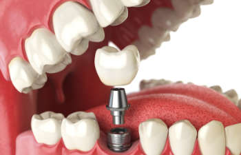 dental implant visualisation