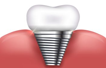 Dental Implants Marietta GA